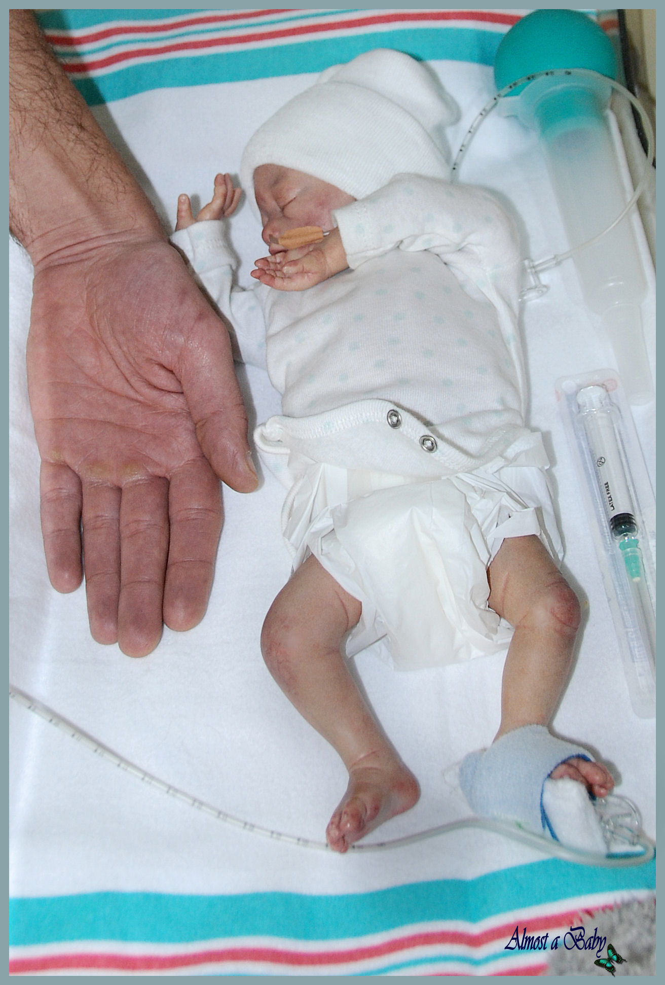 ABORTION 21 week Baby born Alive ! - Premature Baby Birth ...