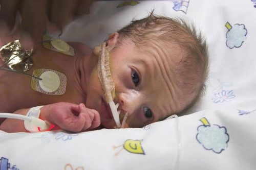baby birth premature